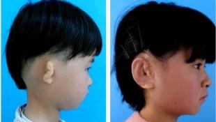 китайцы начали выращивать уши в лабораториях