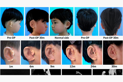 биоимпланты уши